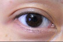 女人眼袋重该怎么去除
