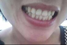 牙齒黃到底該怎么改善 妹子必看