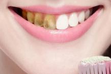 导致牙黄的4种因素 怎样美白