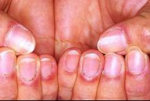 皮肌炎發病有哪些特點 該如何防范