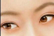 双眼皮手术 哪些人不适合做