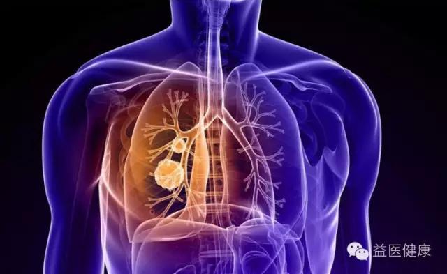 吸烟就一定会得肺癌吗?