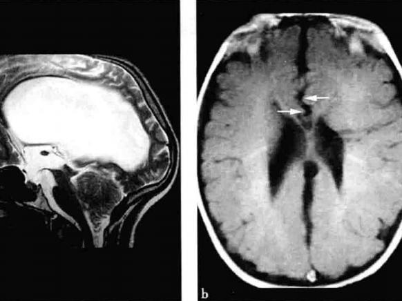 E诊断:小脑扁桃体下疝畸形(Chiari畸形)
