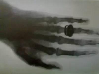 医学影像史上3个有趣的小故事