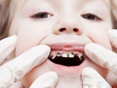 孩子掉的乳牙千万别扔竟能保命