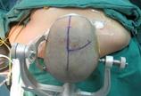 实拍:开颅手术全过程