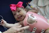 美女婴心脏长体外手术后平安出院