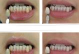 牙周病对比图