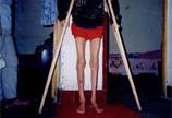 肌无力症状图片