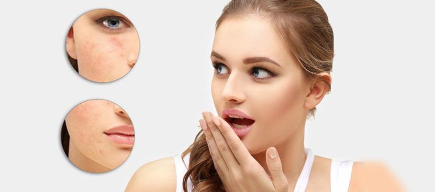 嘴角长痘是因为什么?怎么调理?