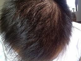 头发脱发比较严重如何护理呢