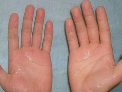 手容易出汗是什么原因?