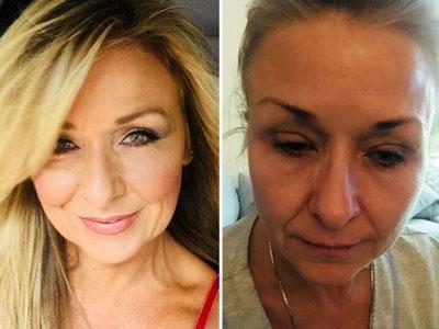 化妆25年从不卸妆险失明!化妆性眼病了解一下