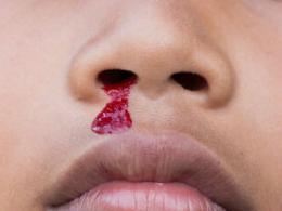 究竟该如何预防小儿鼻子出血
